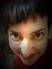 Post radiation waffle face